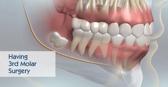 3rd Molar Surgery