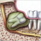 Wisdom Teeth Cysts